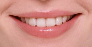 smile_line